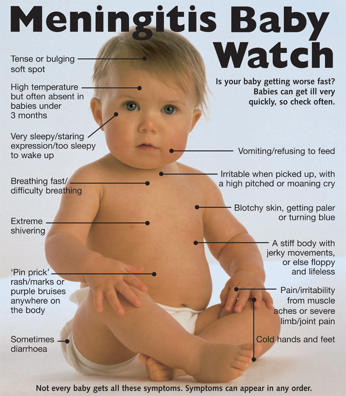 Know the Meningitis symptoms for babies